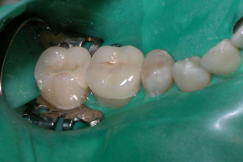 Kofferdam Membran in der Mundhöhle eines Patienten