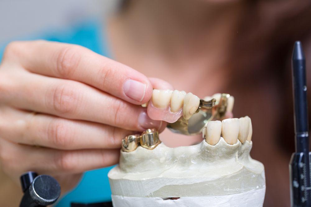 Dental restorations u removable dentures zahnarzt wien dr