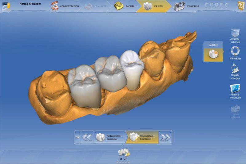 Instant Dental Bridge Dentist Vienna