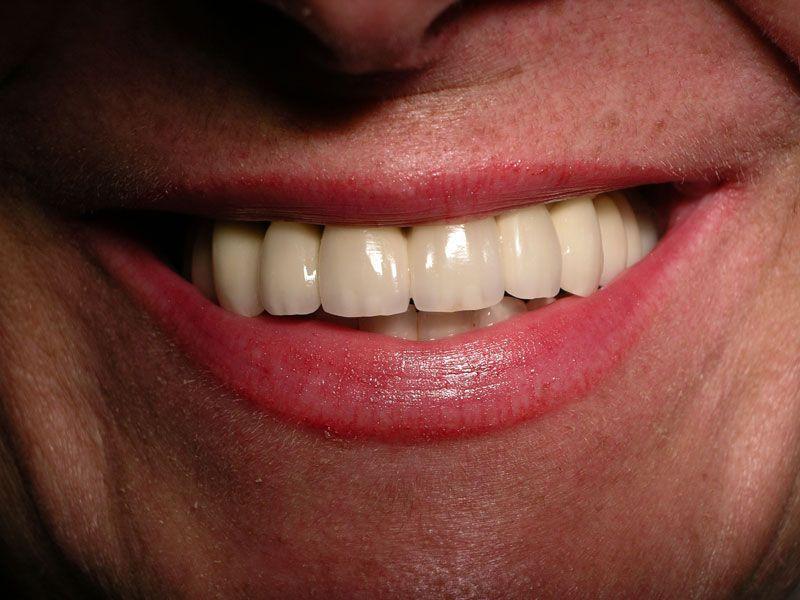 Dental Implants Dentist Vienna