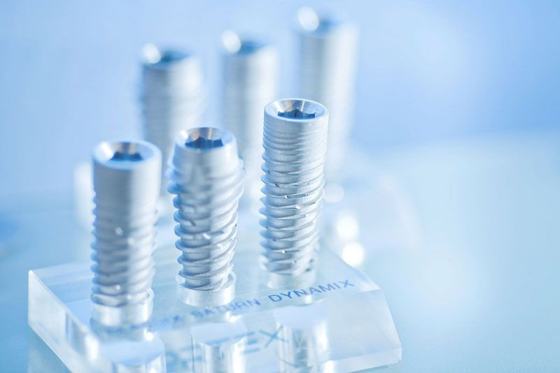 Implantate Zahnarzt Wien