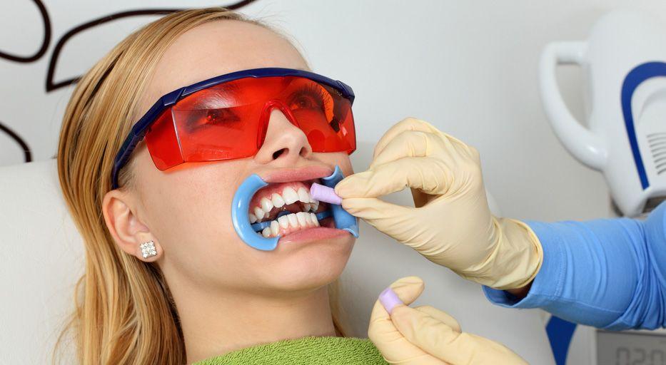 Bleaching Zahnarzt Wien