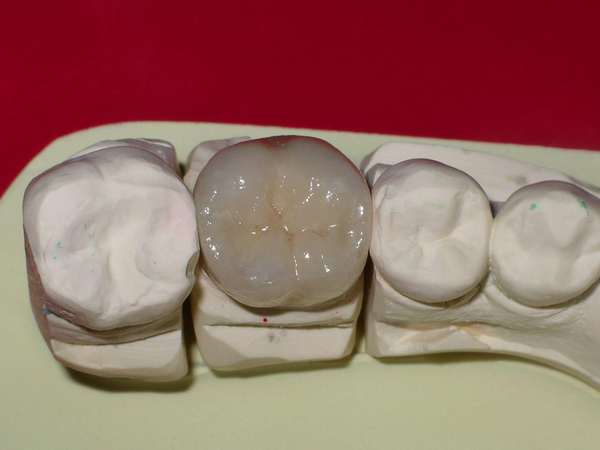 Kronen und Brücken Zahnarzt Wien