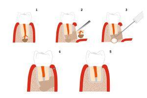 Wurzelspitzenresektion, Wurzelbehandlung Vorgang